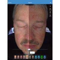 Quality Face Skin Analyzer For Clinic Face Care Test , Facial Skin Analyzer for sale