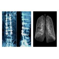 China Sharp Radiographic Medical X Ray Films , Mri Dr Ct Digital Dry Imaging Film on sale