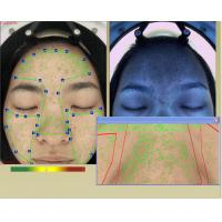 Quality Professional 3d Facial Skin Hydration Analyzer Machine With Touch Screen for sale