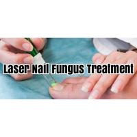 China Safe Laser Therapy Machine For Fungal Nail Infection , Toe Nail Fungus Laser Equipment on sale