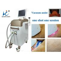 Quality Fast Vacuum Laser Hair Removal Machine Comfortable Permanent Hair Reduction for sale