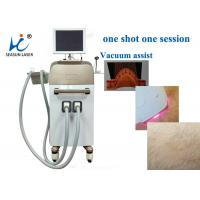 Quality High Speed Vacuum Assisted Diode Laser Treatment For Hair Removal , Small Size for sale