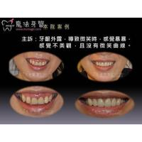 Quality Full Mouth Dental Implants for sale
