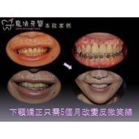 Quality Teeth Correction for sale